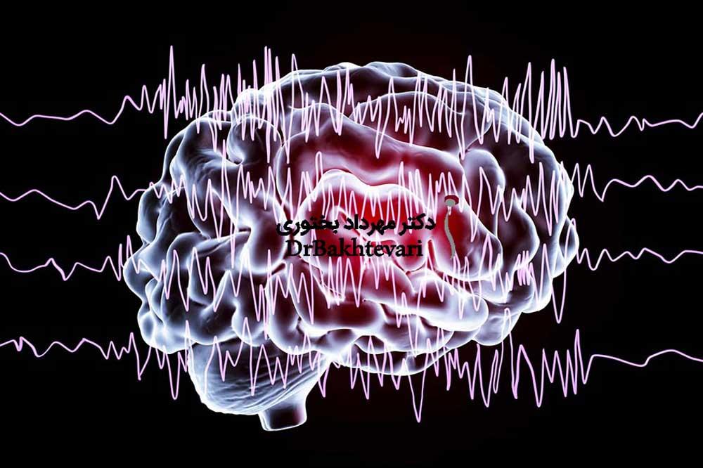 مشکلات مغزی و صرع که نیاز ب جراحی دارد