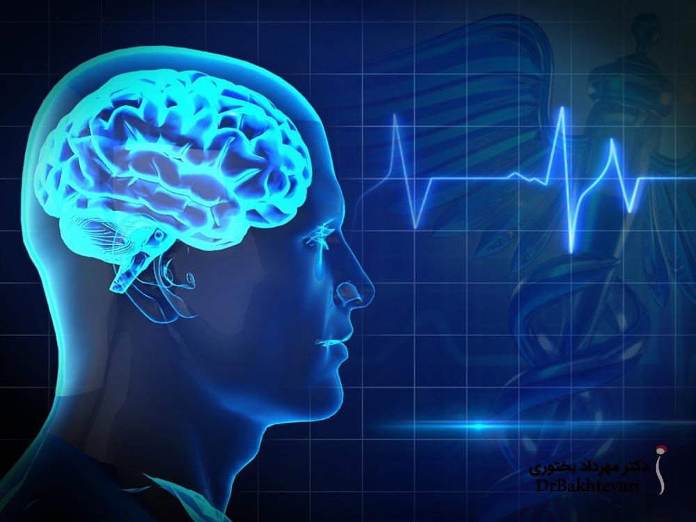 تشنج از مشکلات مغزی نشات می گیرد