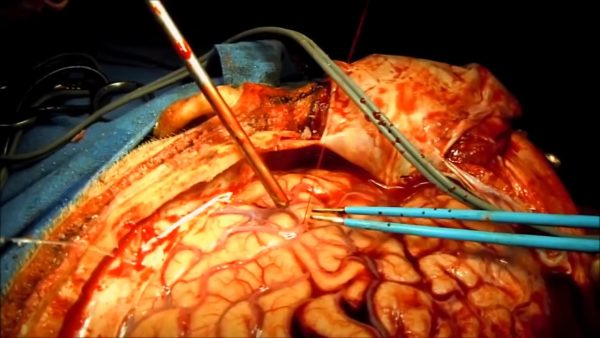 دکتر بختوری ؛ متخصص جراحی مغز و اعصاب