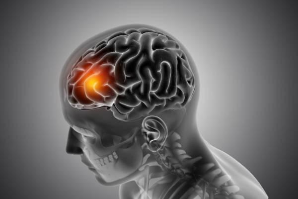 تومور سی پی انگل چیست و علل ایجاد آن کدامند؟