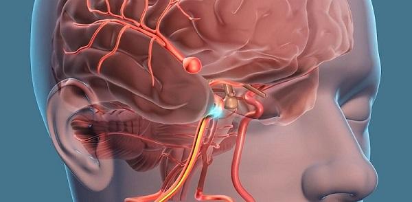 آنوریسم های مغزی ، علائم و روش های درمانی