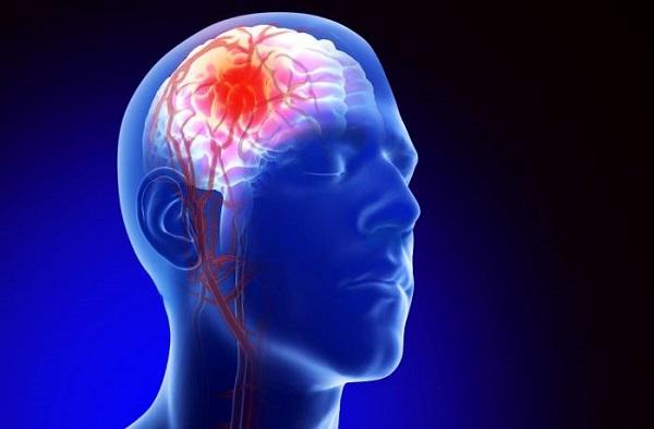 آنوریسم های مغزی