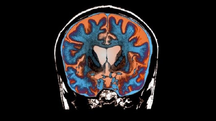 عوارض بیماری هانتینگتون شامل چه مواردی است؟