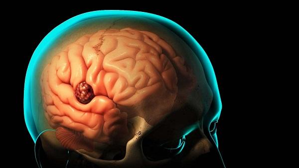 همه چیز در مورد تومور مغزی و روشهای درمان آن