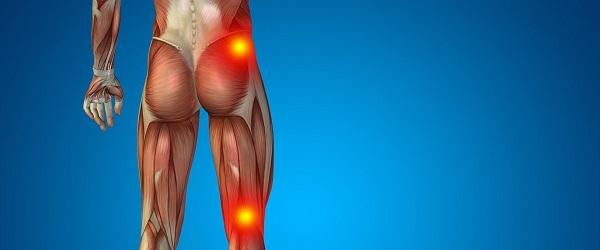 از عصب سیاتیک و درد آن چه میدانید؟