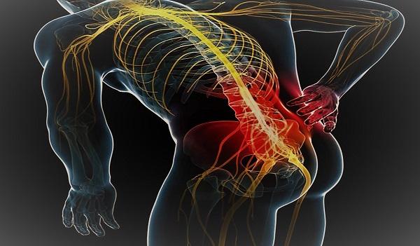 عصب سیاتیک