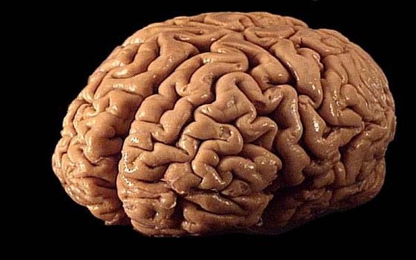 هر آنچه لازم است در مورد تفاوت مرگ مغزی و کما بدانید