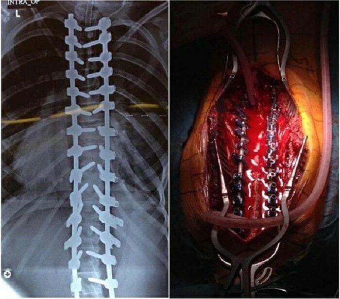 جراحی اصلاحی ستون فقرات