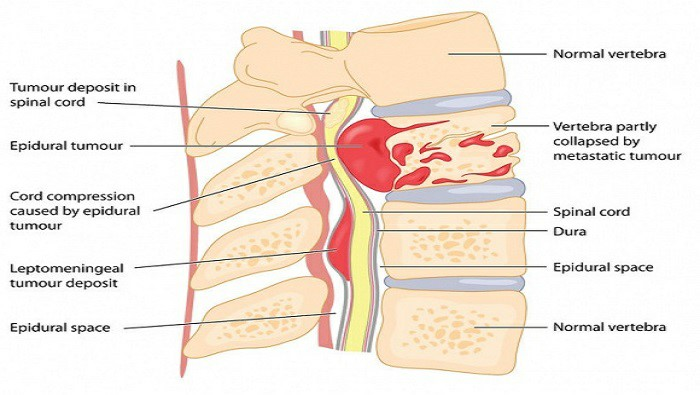 انواع تومور نخاع