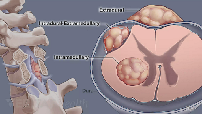 تومور نخاع چیست؟