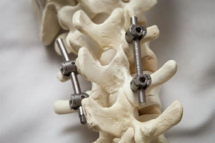 جراحی تثبیت برای تنگی کانال نخاع