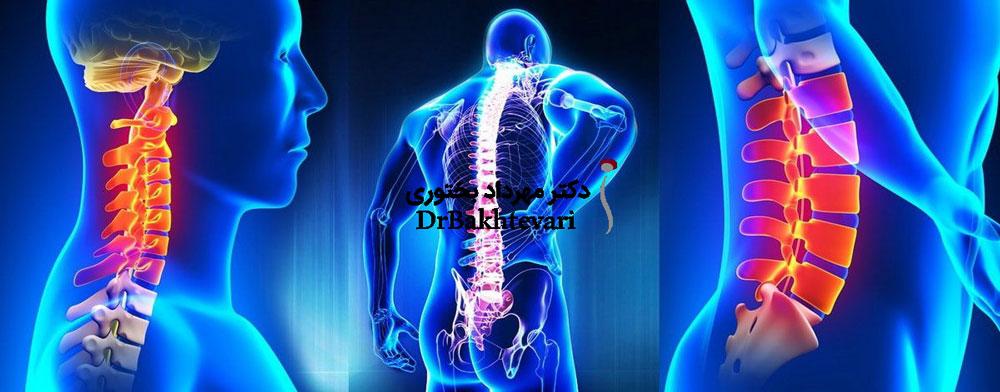 درمان درد ستون فقرات