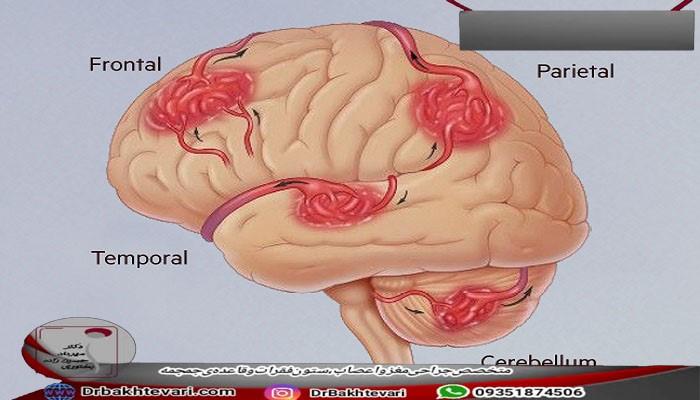 انواع ناهنجاری شریانی (AVM)