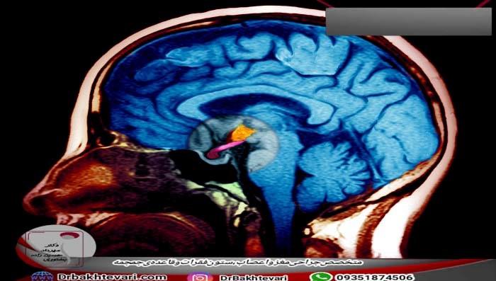 بیماری های غده هیپوتالاموس