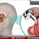 تومور پرولاکتینوما در هیپوفیز