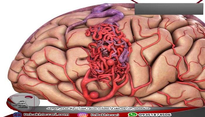 علایم AVM در بیماران چگونه است؟