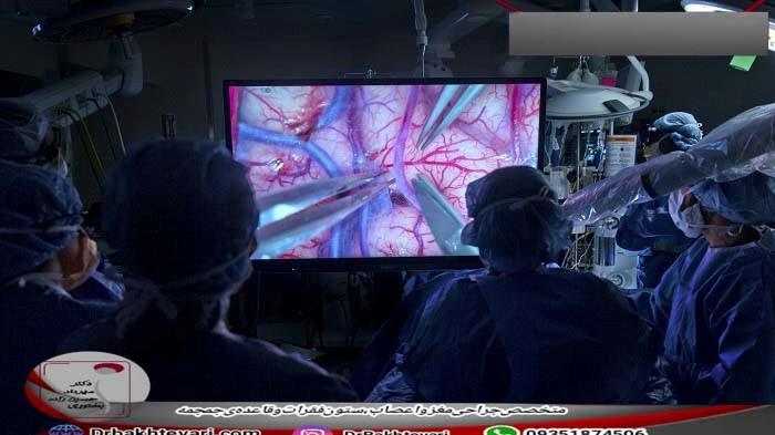 هزینه های جراحی AVM