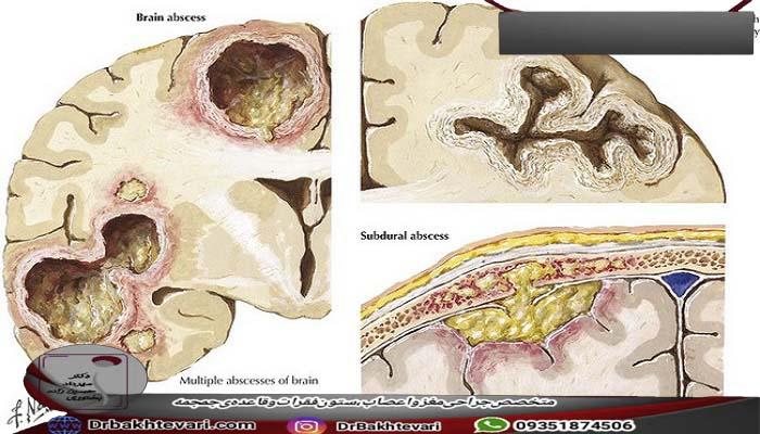 عفونت های آبسه مغزی