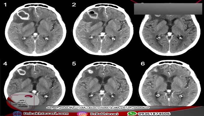 ام ار ای مغز آبسه های مغزی