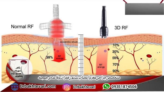 RF یا رادیوفرکوانسی