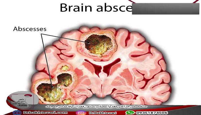 علت های آبسه مغزی
