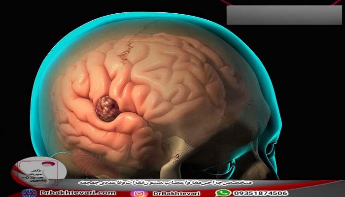 درمان آبسه مغزی چیست؟