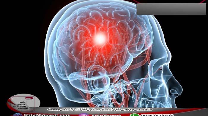 درمان آبسه مغزی