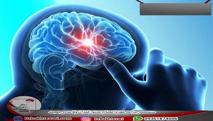 علائم آبسه مغزی