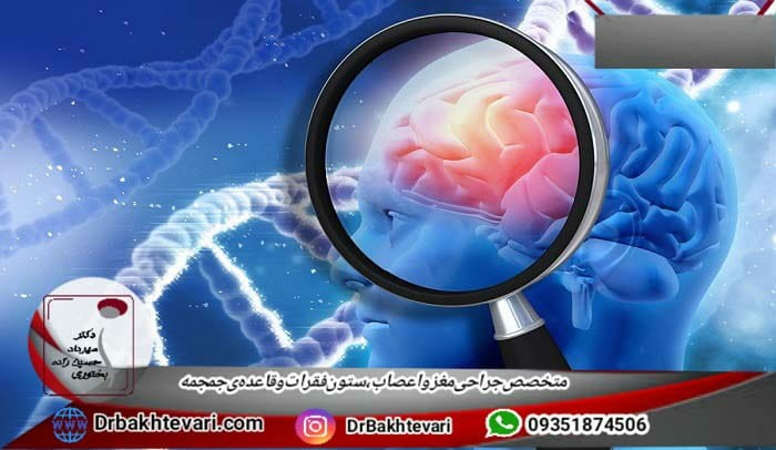 انواع بیماری های ژنتیک مغز و اعصاب
